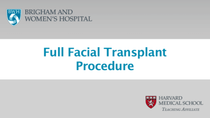 Case Study: Full Facial Transplant