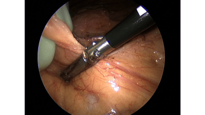 Laparoscopic Hand-assisted Total Colectomy