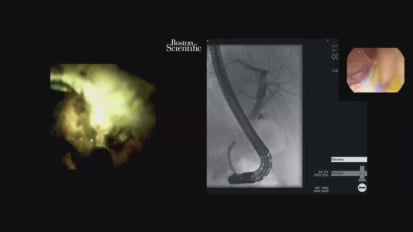 Managing a Difficult Cystic Duct Stone using Cholangioscopy with EHL, by George Webster, MD