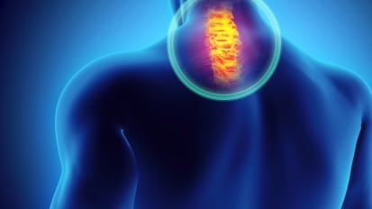 Cervical Spinal Alignment: from Text Neck to Dropped Heads