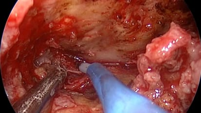 Endoscopic Endonasal Transclival Transcondylar Approach for Foramen Magnum Meningioma