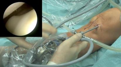 Knee Arthroscopy: Portal Placement and Examination Course