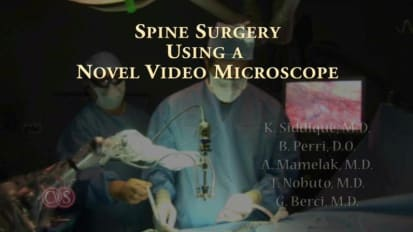 Spinal Surgery using a Novel Video Microscope VITOM