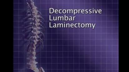 Lumbar Laminectomy