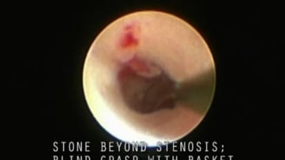 Use of a Basket to Approach a Stone Beyond a Stenosis