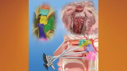 Endoscopic Endonasal Pituitary and Skull Base Surgery