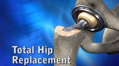 Total Hip Replacement