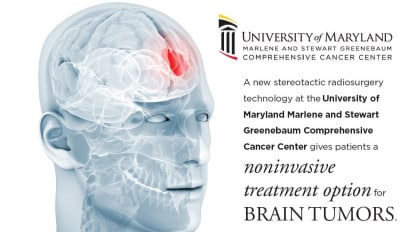 Next Generation Treatments for Brain Tumors: The Already Realized and the Promising