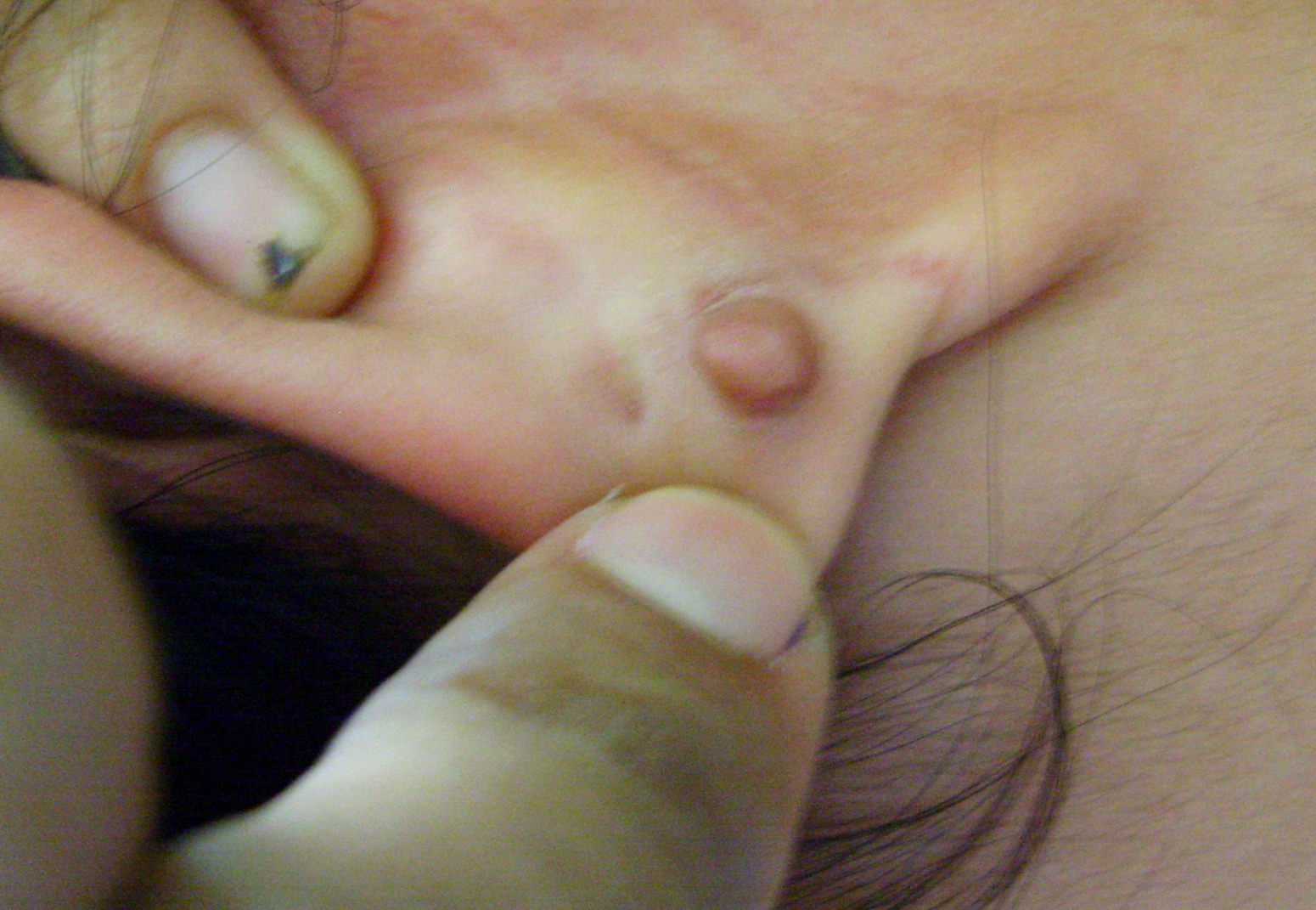Ear Lobe keloid - Post piercing