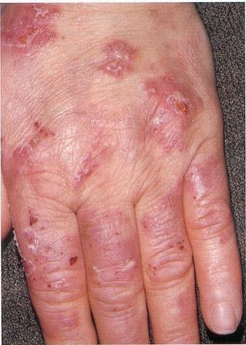 Dermatitis Herpetiformis(DH)/Linear IgA/Drug related?