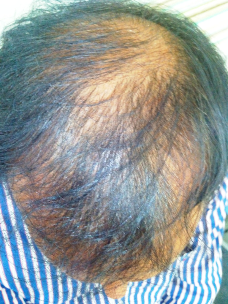 PRP as a stand-alone therapy for Androgenetic Alopecia
