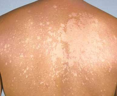 Pityriasis Versicolor -  Suggest treatment