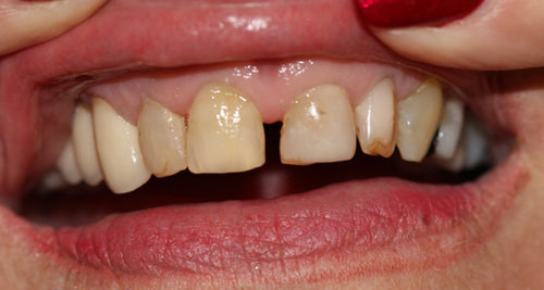 Anterior Veneers with breaking down and unaesthetic proportions.