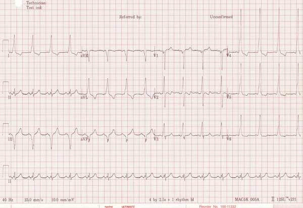 ECG of a 42 yr old male
