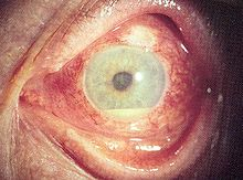 Recurrent Orogenital Ulcers for 1 month in a 27 yr old female