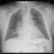 CXR of a Patient with Breathlessness