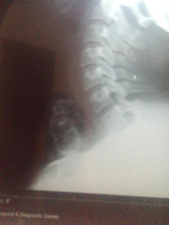Central neck mass
