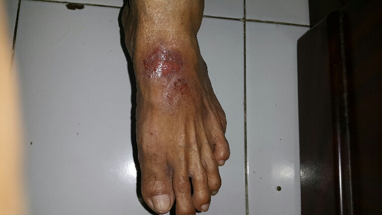 Diabetic Female with lesions on Foot