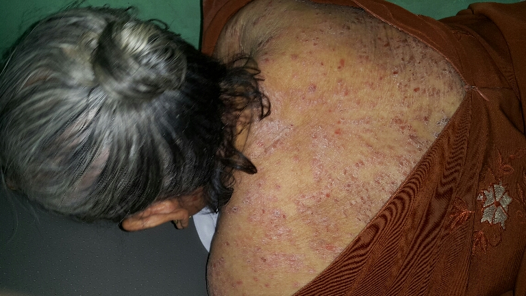 Skin lesions in 73 year old female