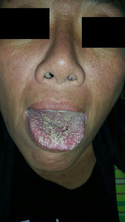 Coated Tongue. Diagnosis?