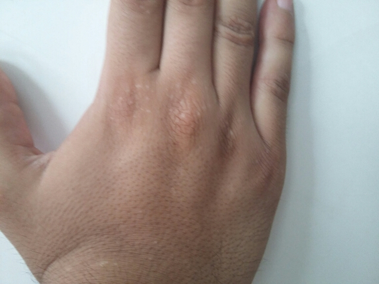Lesions on Hand