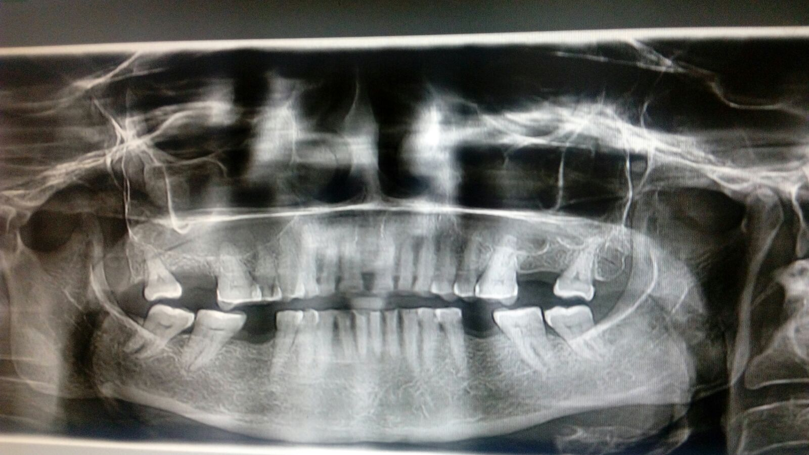 Spot findings in Dental X-ray