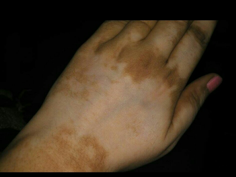 Itchy hyperpigmentation on hand