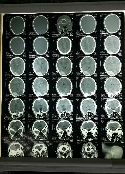 Imaging of patient injured in blast injury