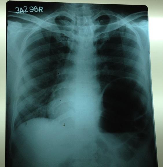 Cough & chest pain