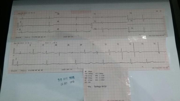 ECG of unconscious patient