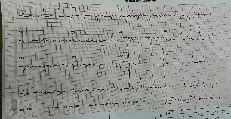 Sudden unconsiousness & seizures in patient with CHF