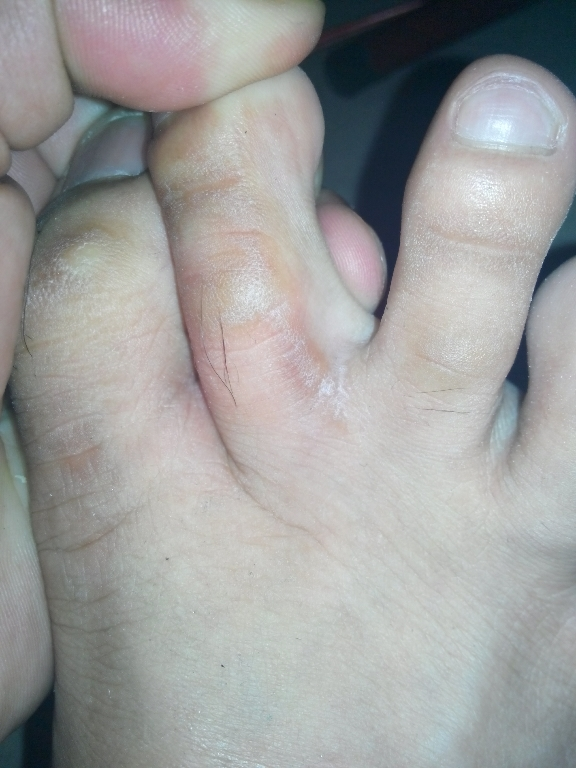 lesions on foot