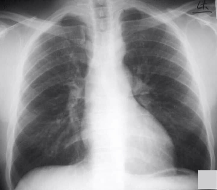Abnormalities in this chest X-ray
