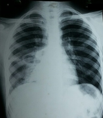 Male child with fever and cough