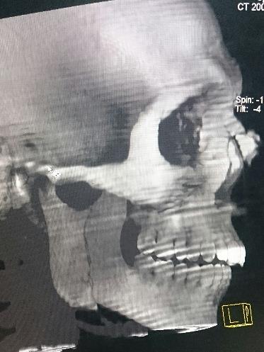 3D CT Facial Bone - Facial bone Fractures