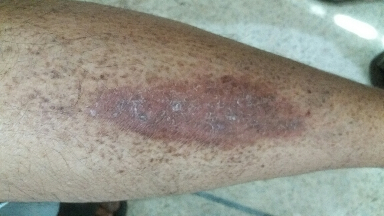 Skin lesion in a diabetic patient
