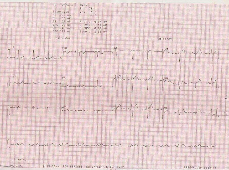 Male with Chest pain and Cardiac Troponin