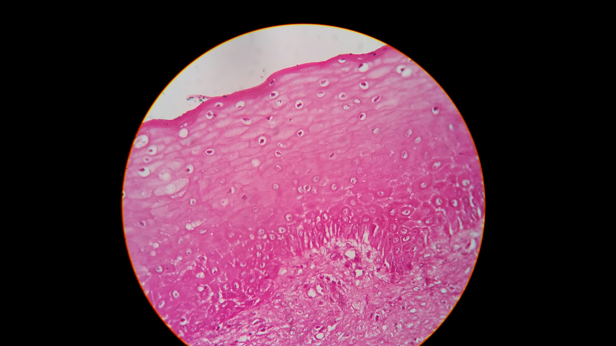 Is this pyogenic granuloma?