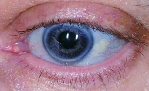 Clinical findings in this eye?
