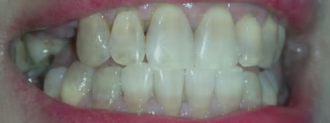 Discoloration of teeth. Comments?