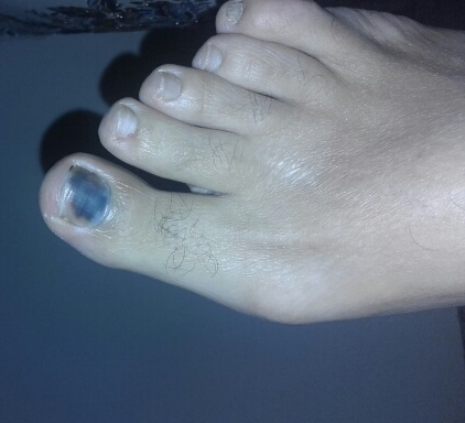 Discoloration of Toe Nail