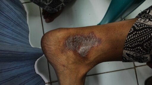 Itch on ankle