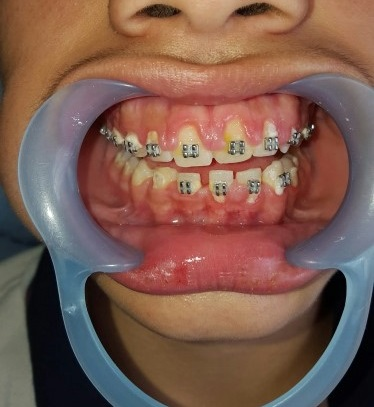 Orthodontics treatment for spacing.