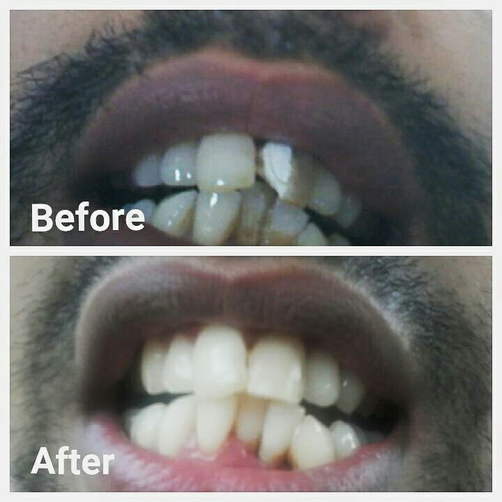 Avulsed left lateral incisor