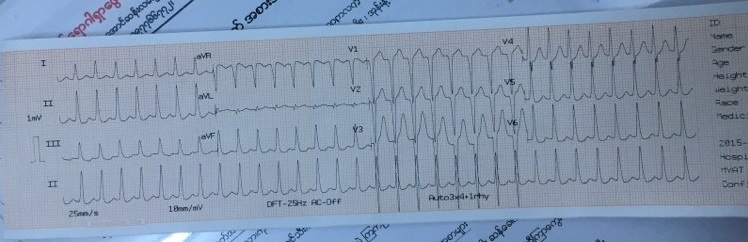 Female pt with palpitation