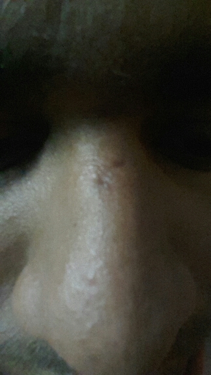 Scar on nose