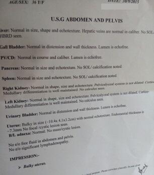 Findings in USG report