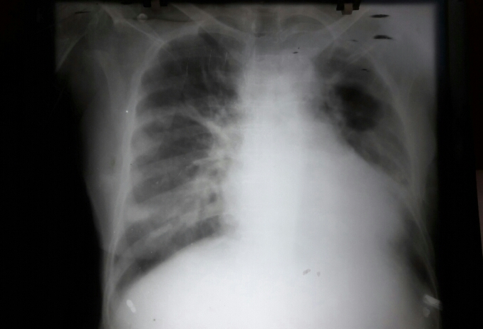 Complex case of cough and breathlessness