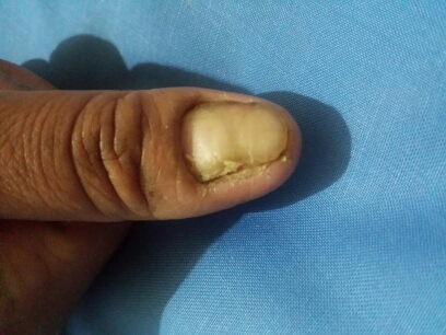 Pus and Itch under nail