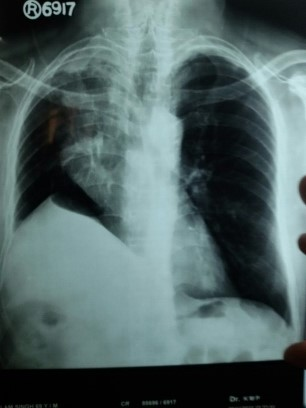 Dry Cough and Chest Pain. CXR findings?